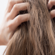 Itchy Scalp but No Lice? Here's What It Might Be