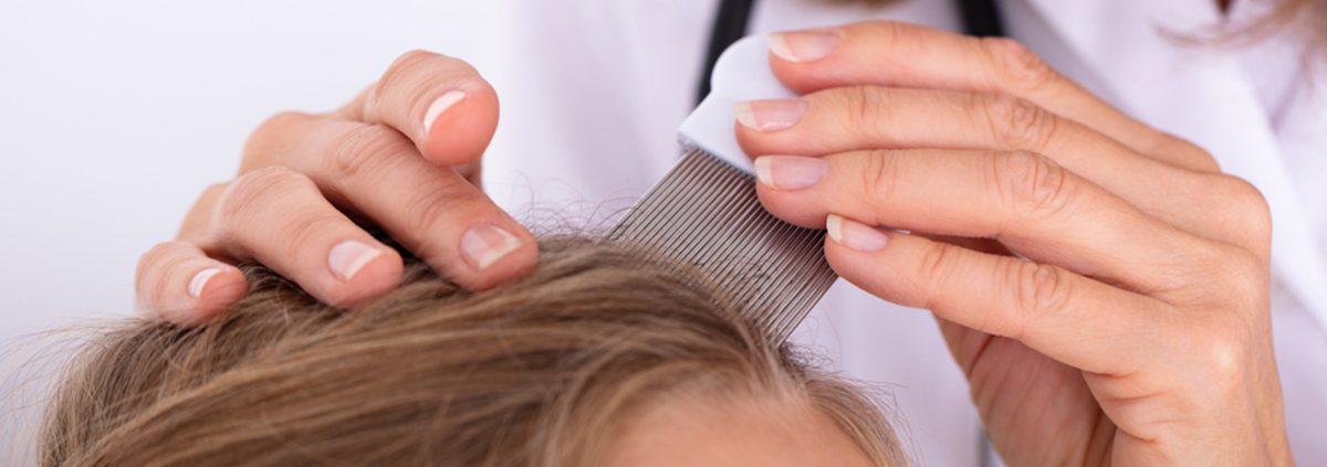 Don't Bring Head Lice Home From Summer Camp